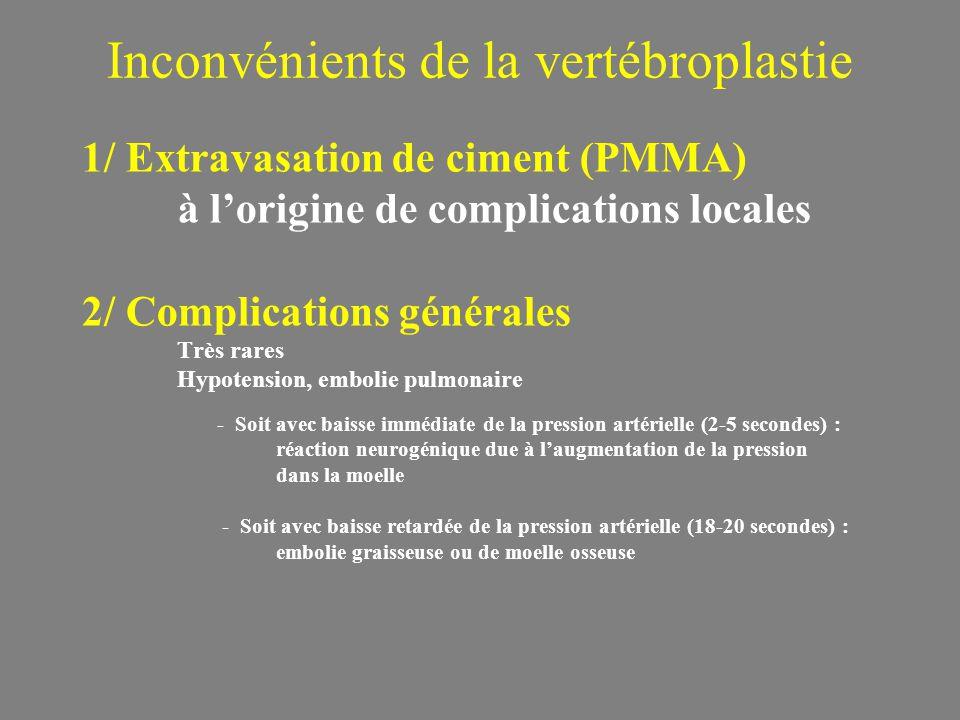 1/ Extravasation de ciment (PMMA) à lorigine de complications locales 2/ Complications générales Très rares Hypotension, embolie pulmonaire Inconvénients de la vertébroplastie - Soit avec baisse immédiate de la pression artérielle (2-5 secondes) : réaction neurogénique due à laugmentation de la pression dans la moelle - Soit avec baisse retardée de la pression artérielle (18-20 secondes) : embolie graisseuse ou de moelle osseuse