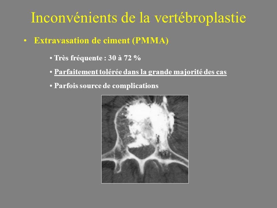 Inconvénients de la vertébroplastie Extravasation de ciment (PMMA) Très fréquente : 30 à 72 % Parfaitement tolérée dans la grande majorité des cas Parfois source de complications