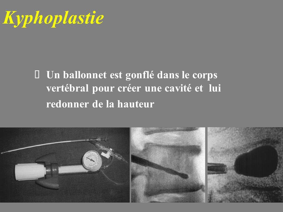 Kyphoplastie Un ballonnet est gonflé dans le corps vertébral pour créer une cavité et lui redonner de la hauteur