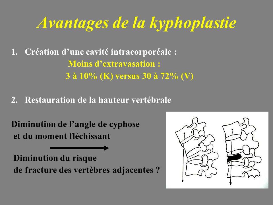 Avantages de la kyphoplastie 1.