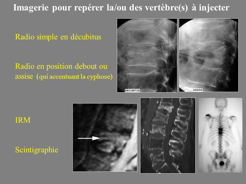 Imagerie pour repérer la/ou des vertèbre(s) à injecter Radio simple en décubitus Radio en position debout ou assise ( qui accentuant la cyphose) IRM Scintigraphie