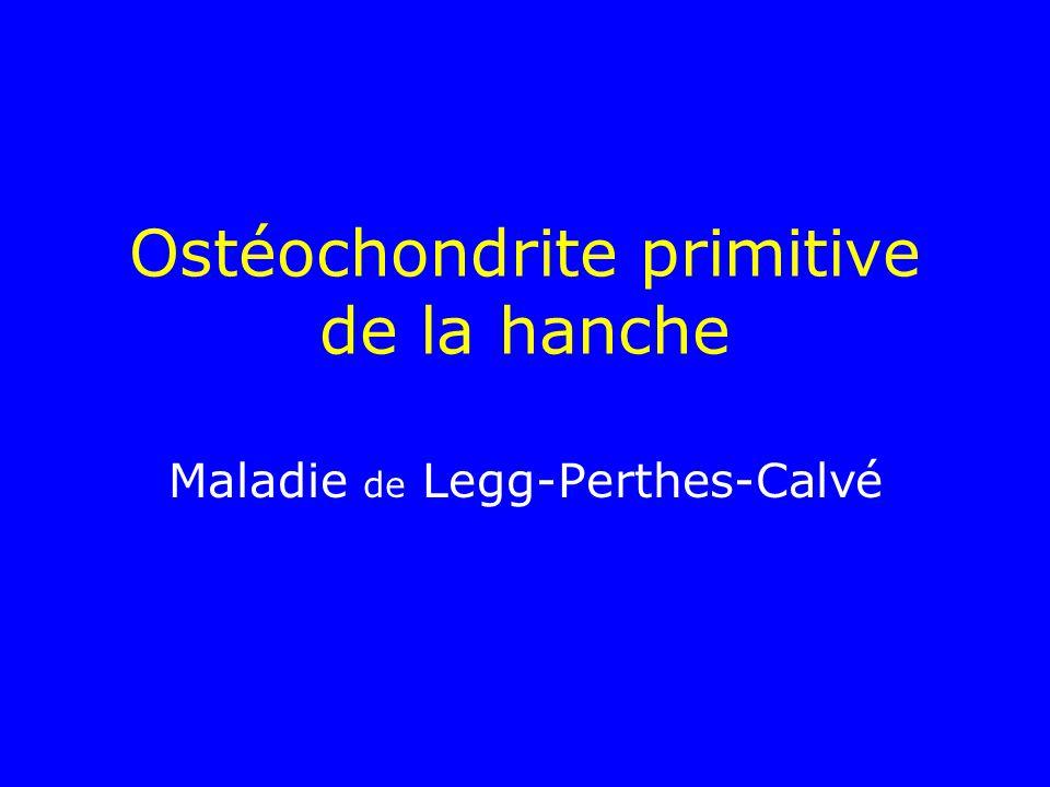 Ostéochondrite primitive de la hanche Maladie de Legg-Perthes-Calvé