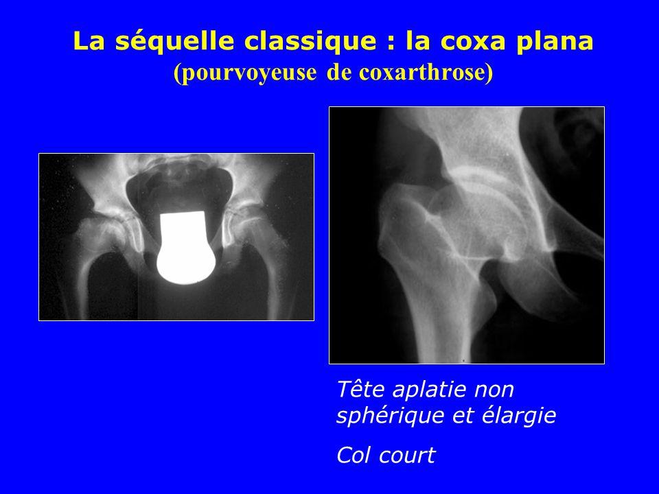 La séquelle classique : la coxa plana (pourvoyeuse de coxarthrose) Tête aplatie non sphérique et élargie Col court