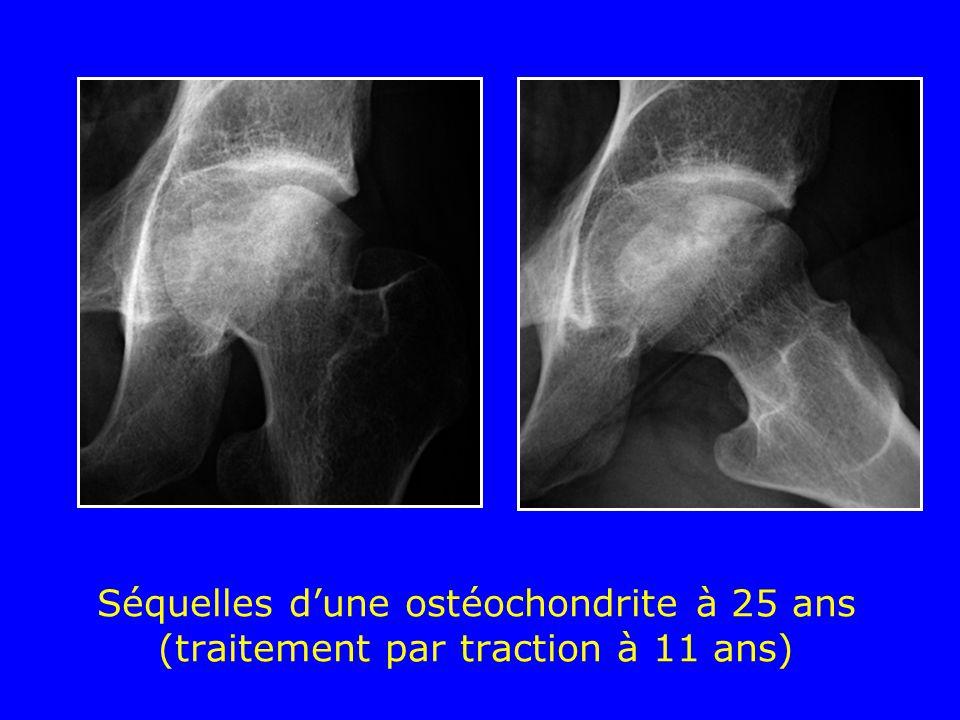Séquelles dune ostéochondrite à 25 ans (traitement par traction à 11 ans)