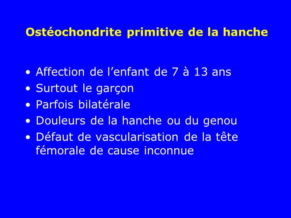 Ostéochondrite primitive de la hanche Affection de lenfant de 7 à 13 ans Surtout le garçon Parfois bilatérale Douleurs de la hanche ou du genou Défaut