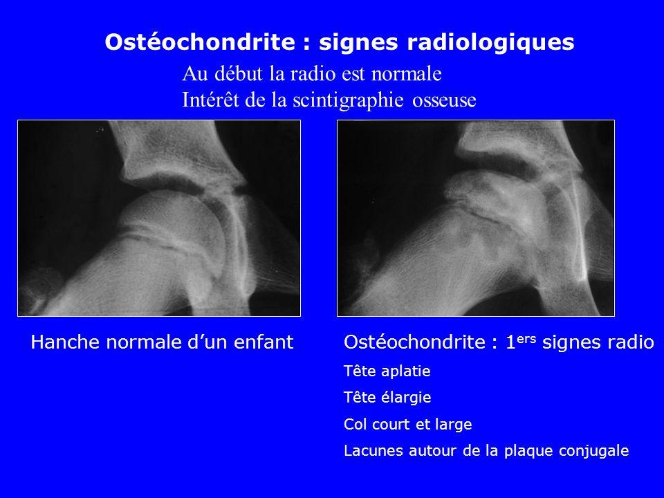 Hanche normale dun enfantOstéochondrite : 1 ers signes radio Tête aplatie Tête élargie Col court et large Lacunes autour de la plaque conjugale Ostéoc