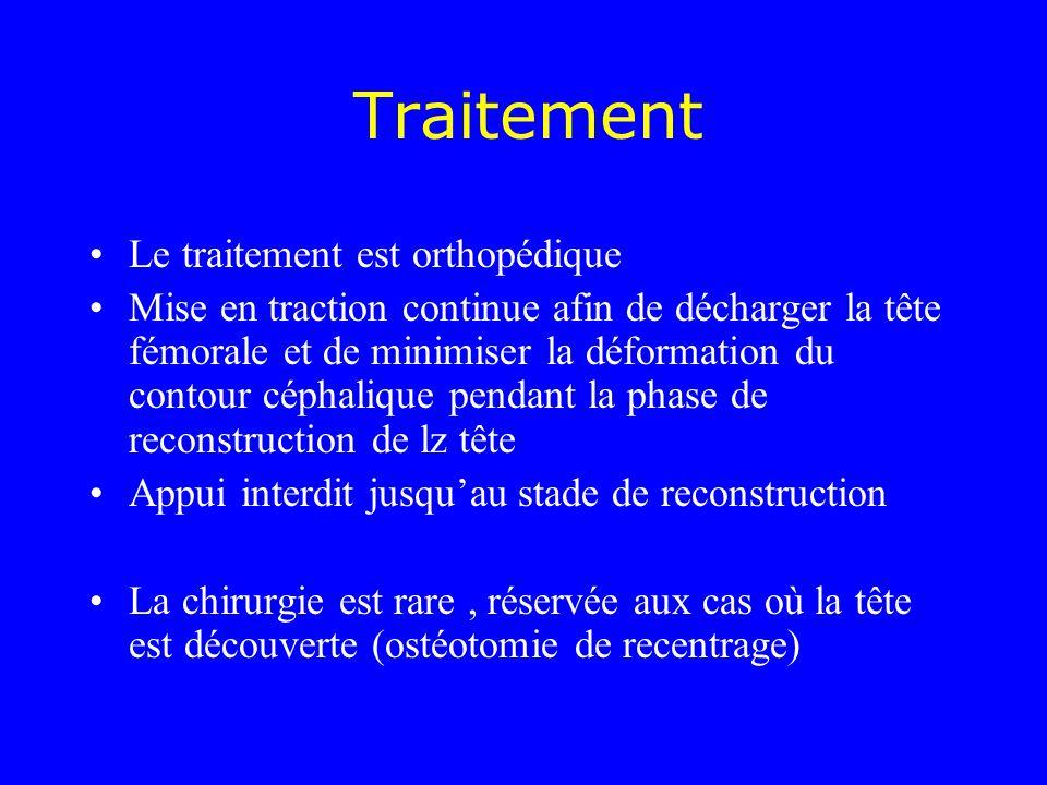 Traitement Le traitement est orthopédique Mise en traction continue afin de décharger la tête fémorale et de minimiser la déformation du contour cépha