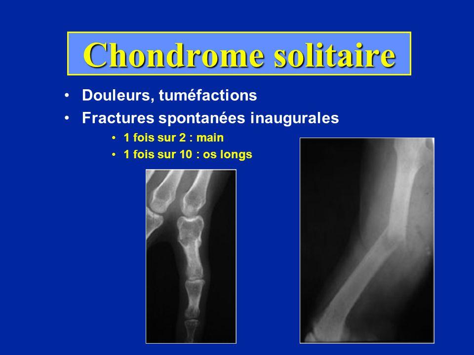 Chondrome solitaire Douleurs, tuméfactions Fractures spontanées inaugurales 1 fois sur 2 : main 1 fois sur 10 : os longs Découverte fortuite : 10%