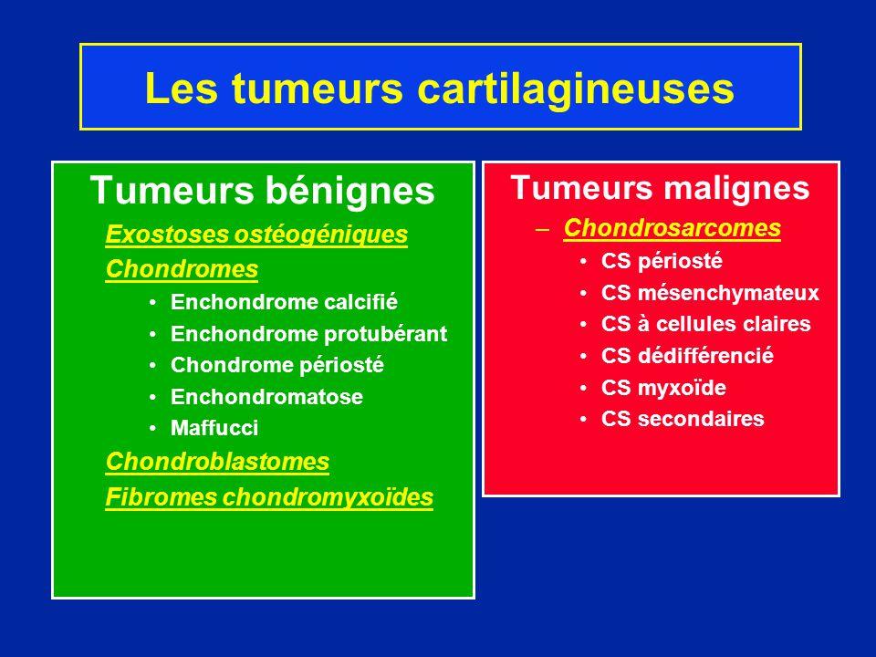 Chondromes Tumeurs cartilagineuses développées à partir de la métaphyse dun os à ossification enchondrale