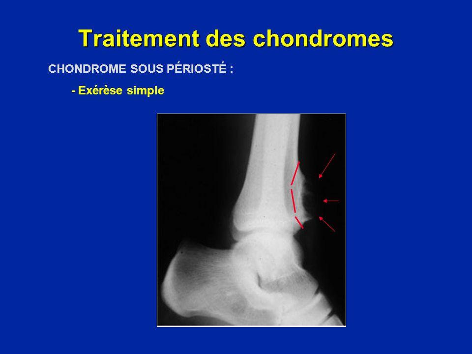 CHONDROME SOLITAIRE - Curetage + comblement spongieux