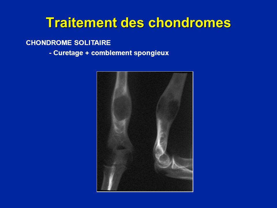 Traitement des chondromes Résection complète et reconstruction par greffe et plaque CHONDROME SOLITAIRE - Curetage + comblement spongieux - Exérèse + greffe + ostéosynthèse