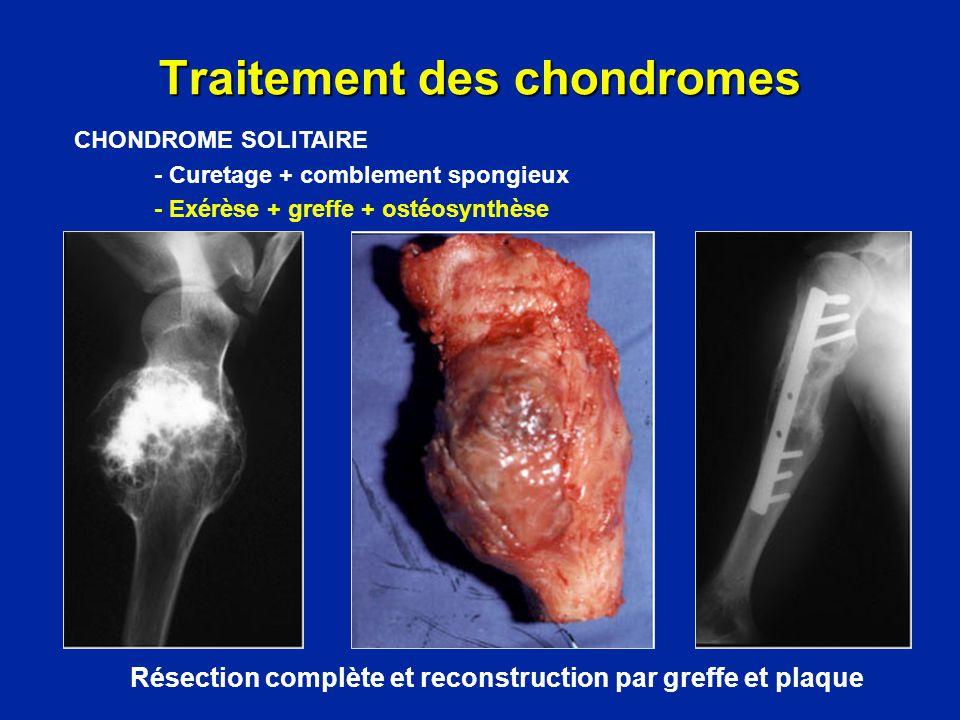 Résection + reconstruction par prothèse interne Traitement des chondromes