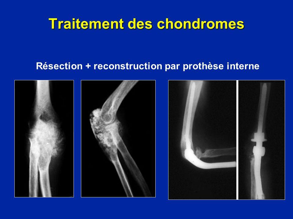 Chondrome compressif : exérèse large Traitement des chondromes