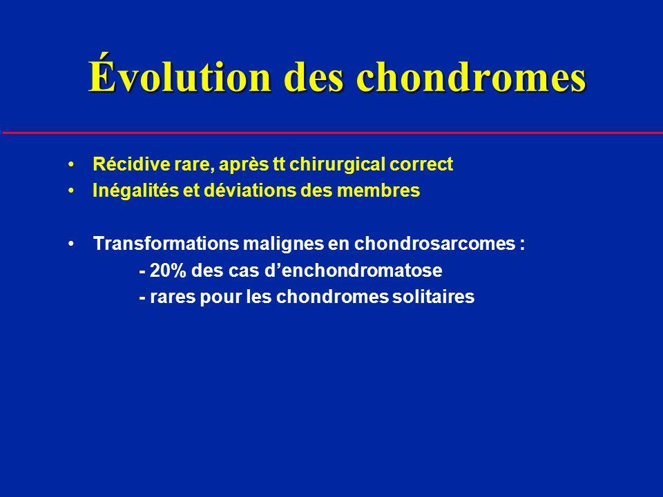 Enchondromatose diffuse (Maladie dOllier) Métaphyses ++ Asymétrie des lésions (unilatéralité dans 50%)