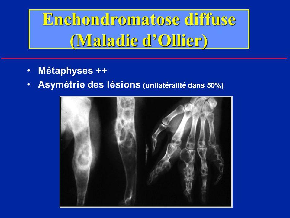 Enchondromatose (Ollier) Métaphyses ++ Asymétrie des lésions (unilatéralité dans 50%)