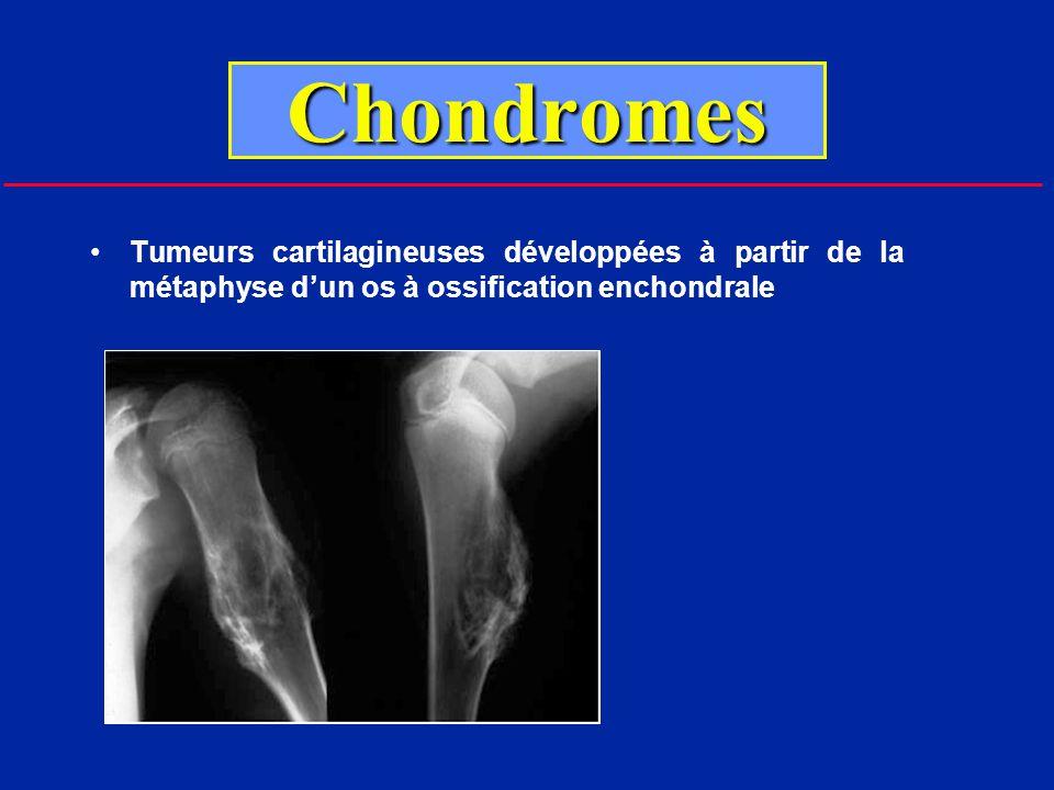Chondromes Chondrome solitaire ou chondromatose multiple (radios du squelette)