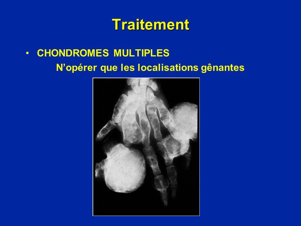 Évolution de la Maladie dOllier Dégénérescence : chondrosarcome Transformations malignes en chondrosarcomes : - 20% des cas denchondromatose - rares pour les chondromes solitaires