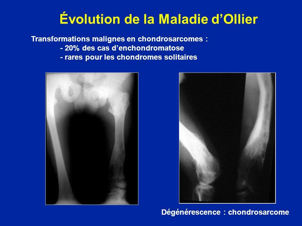 Évolution de la Maladie dOllier Dégénérescence : chondrosarcome Transformations malignes en chondrosarcomes : - 20% des cas denchondromatose - rares p