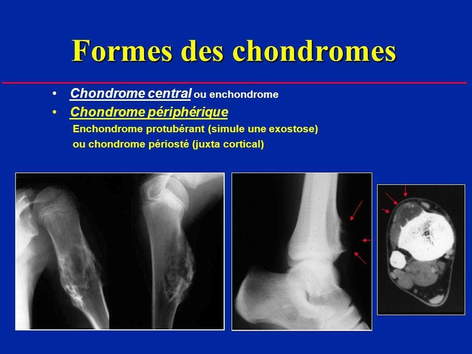 Formes des chondromes Chondrome central ou enchondrome Chondrome périphérique Enchondrome protubérant (simule une exostose) ou chondrome périosté (juxta cortical) Maladie des chondromes multiples ou dyschondroplasie ou enchondromatose ou maladie dOllier si angiomatose = maladie de Maffucci