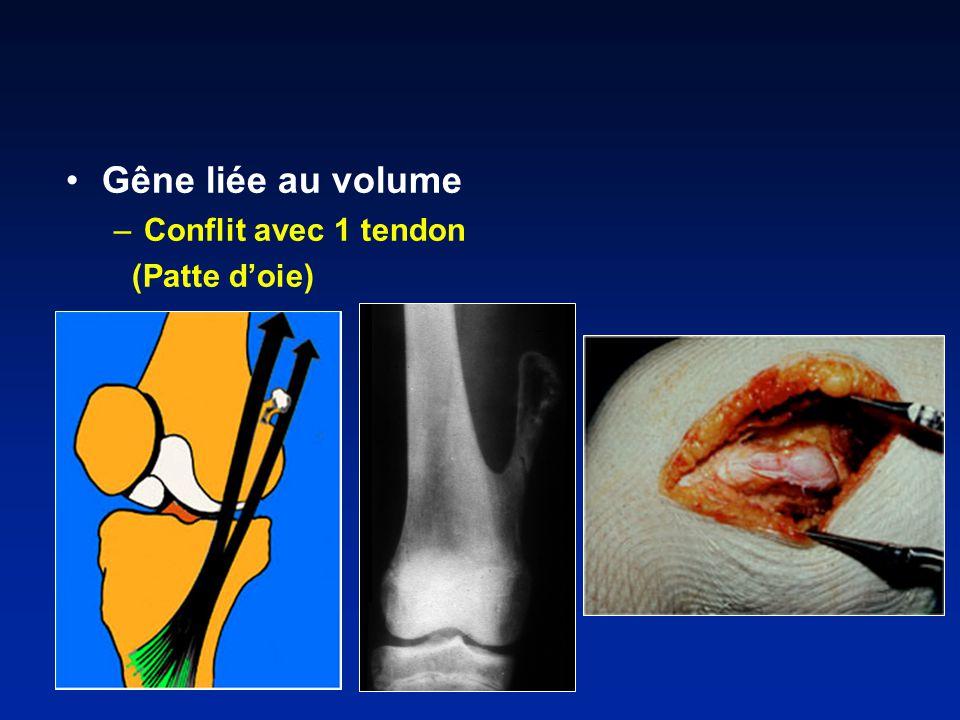 –Conflit avec 1 tendon (Patte doie)