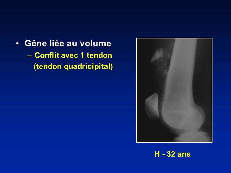 Gêne liée au volume –Conflit avec 1 tendon (tendon quadricipital) H - 32 ans