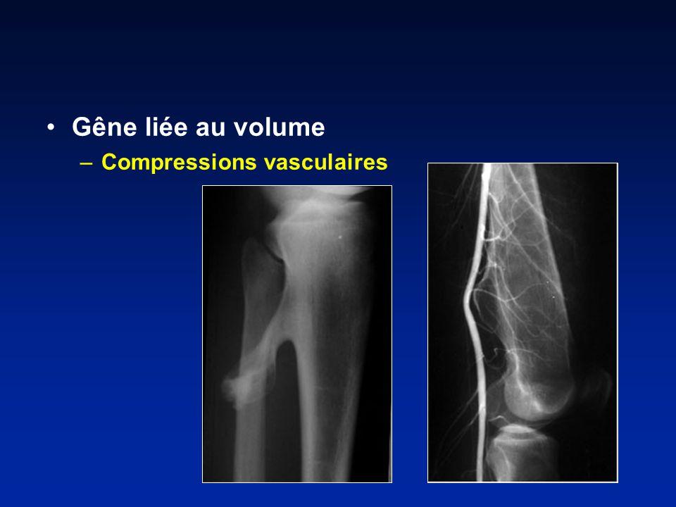 Gêne liée au volume –Compressions vasculaires