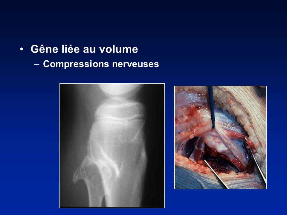 Gêne liée au volume –Compressions nerveuses