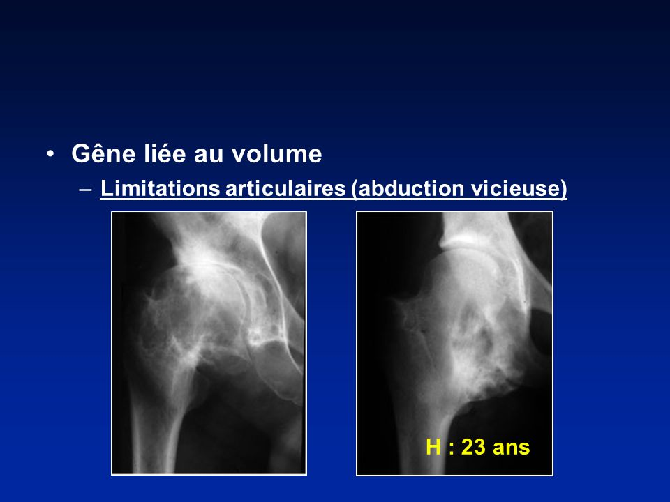 Gêne liée au volume –Limitations articulaires (abduction vicieuse) H : 23 ans
