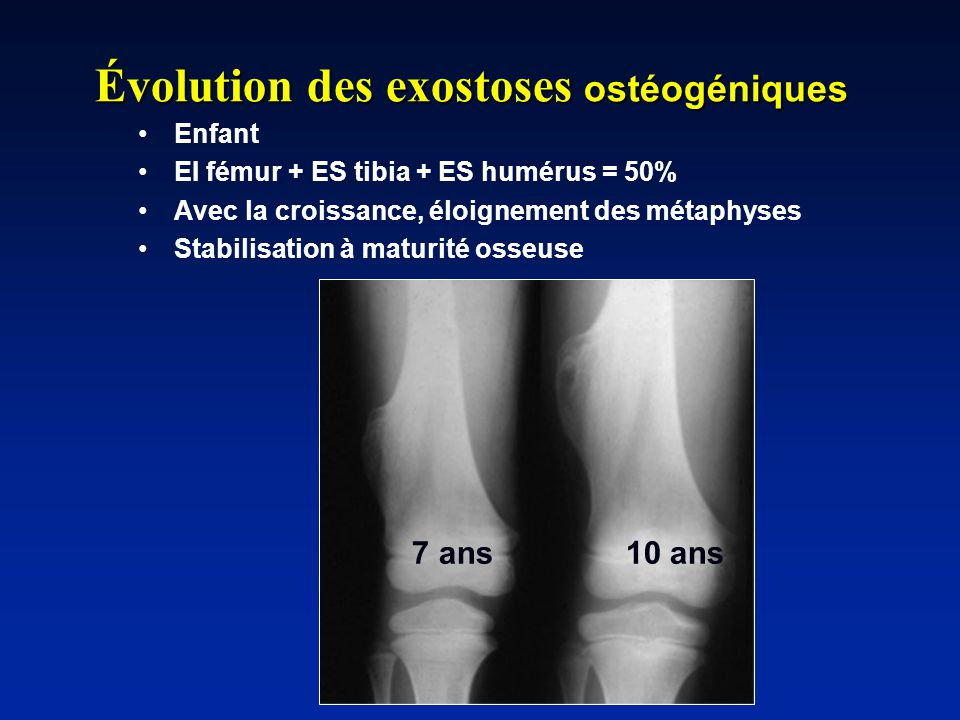 7 ans10 ans Évolution des exostoses ostéogéniques Enfant EI fémur + ES tibia + ES humérus = 50% Avec la croissance, éloignement des métaphyses Stabili