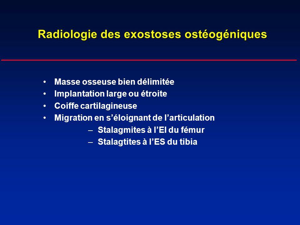 Radiologie des exostoses ostéogéniques Masse osseuse bien délimitée Implantation large ou étroite Coiffe cartilagineuse Migration en séloignant de lar