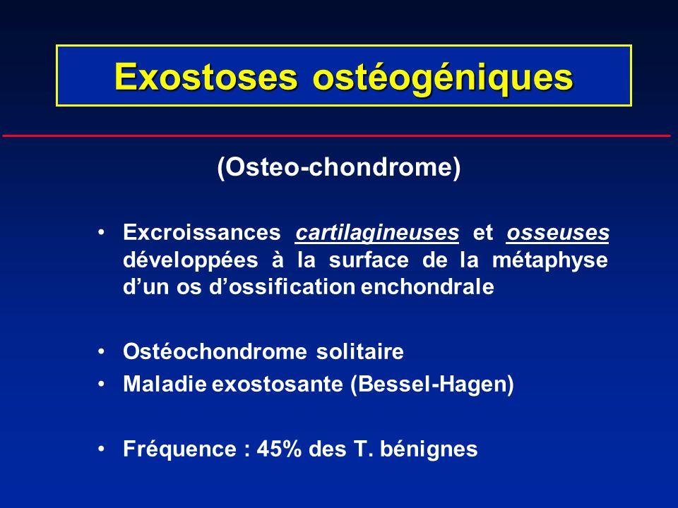 Excroissances cartilagineuses et osseuses développées à la surface de la métaphyse dun os dossification enchondrale Ostéochondrome solitaire Maladie e
