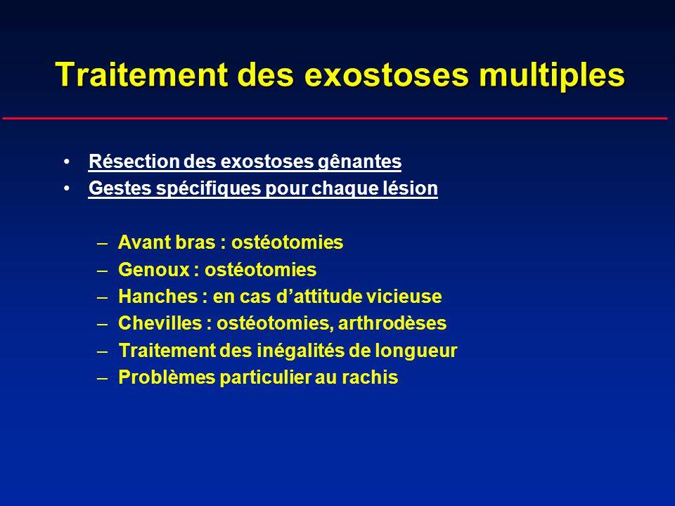 Traitement des exostoses multiples Résection des exostoses gênantes Gestes spécifiques pour chaque lésion –Avant bras : ostéotomies –Genoux : ostéotom