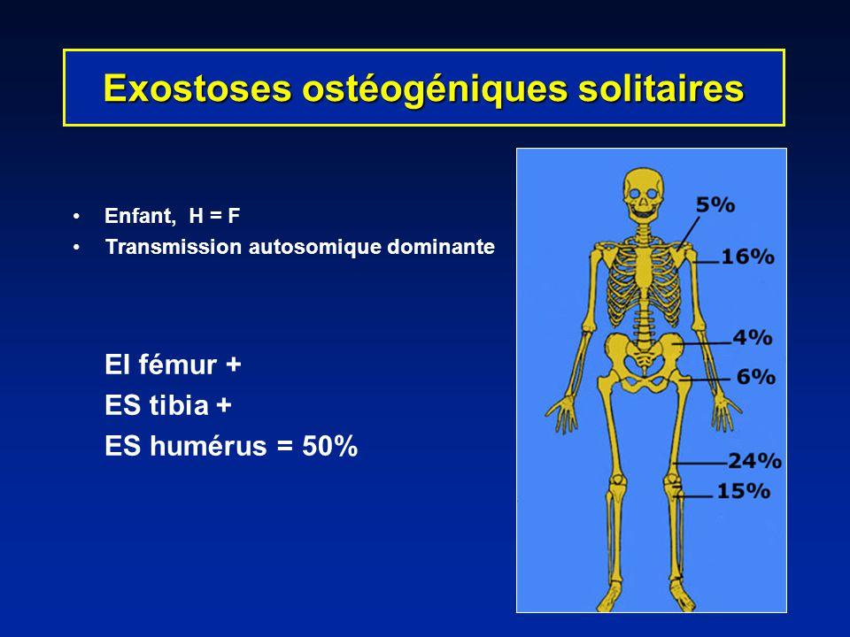 Enfant, H = F Transmission autosomique dominante EI fémur + ES tibia + ES humérus = 50% Exostoses ostéogéniques solitaires