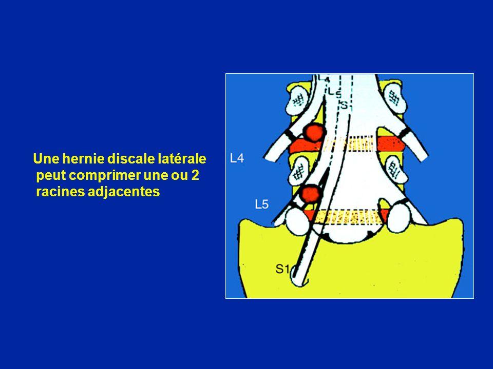 Une hernie discale latérale peut comprimer une ou 2 racines adjacentes