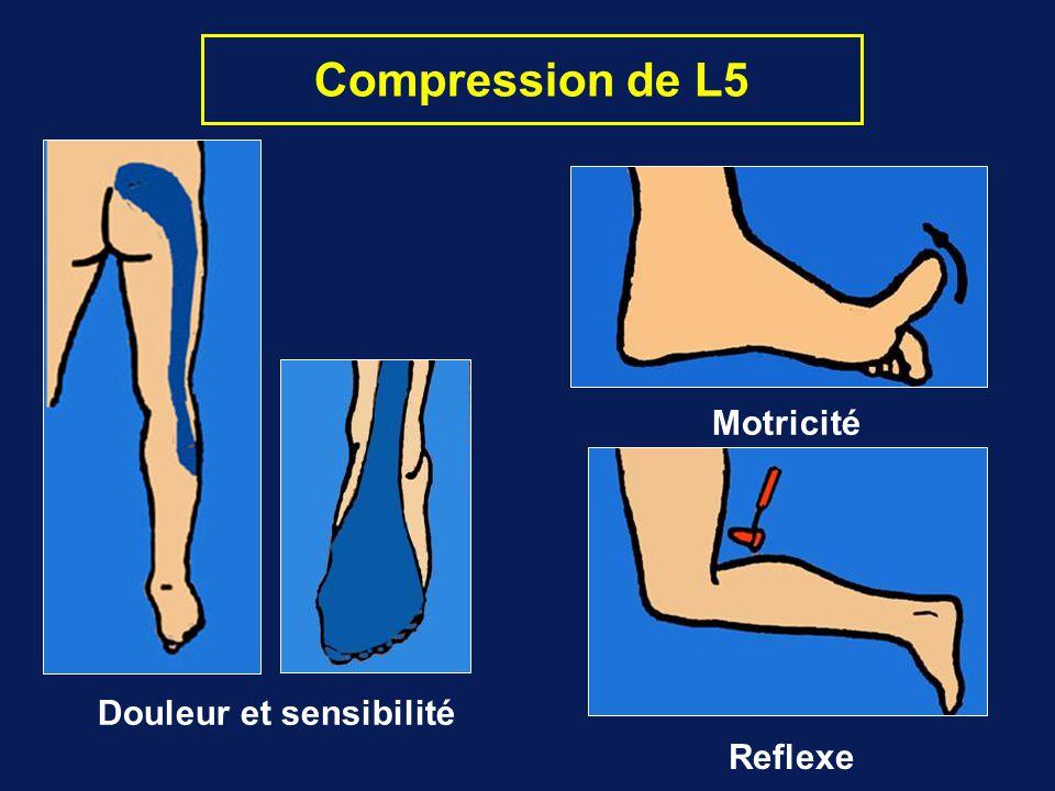 Compression de L5 Douleur et sensibilité Motricité Reflexe