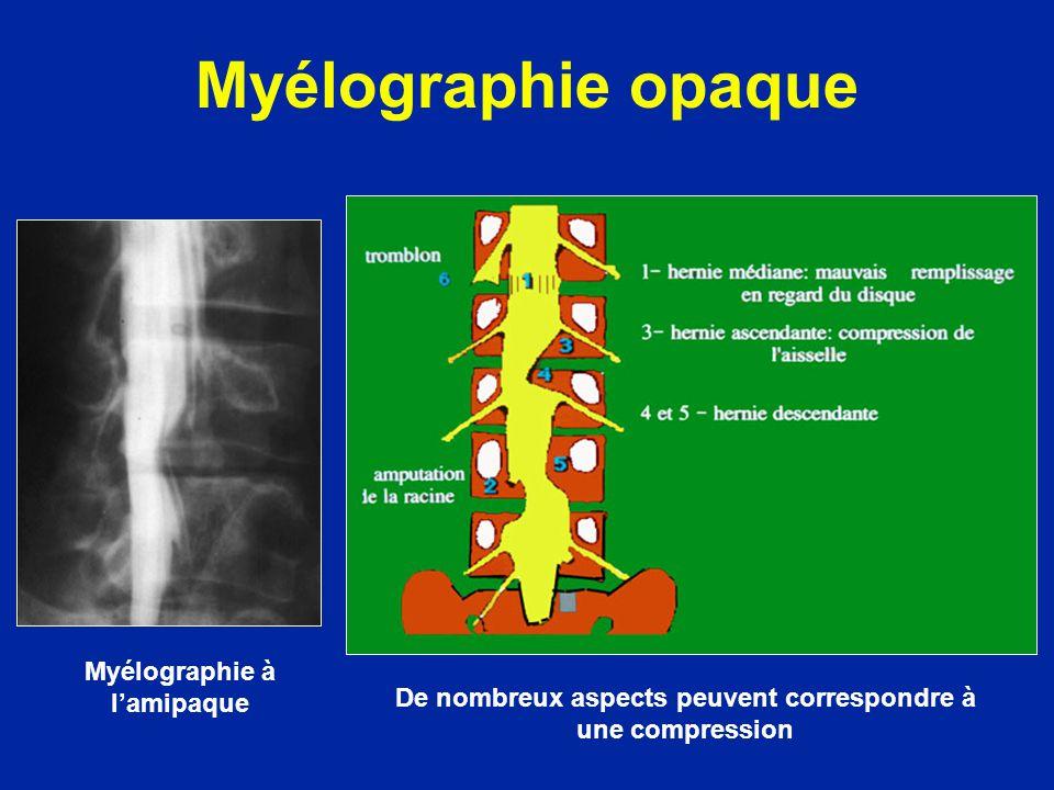 Myélographie opaque Myélographie à lamipaque De nombreux aspects peuvent correspondre à une compression