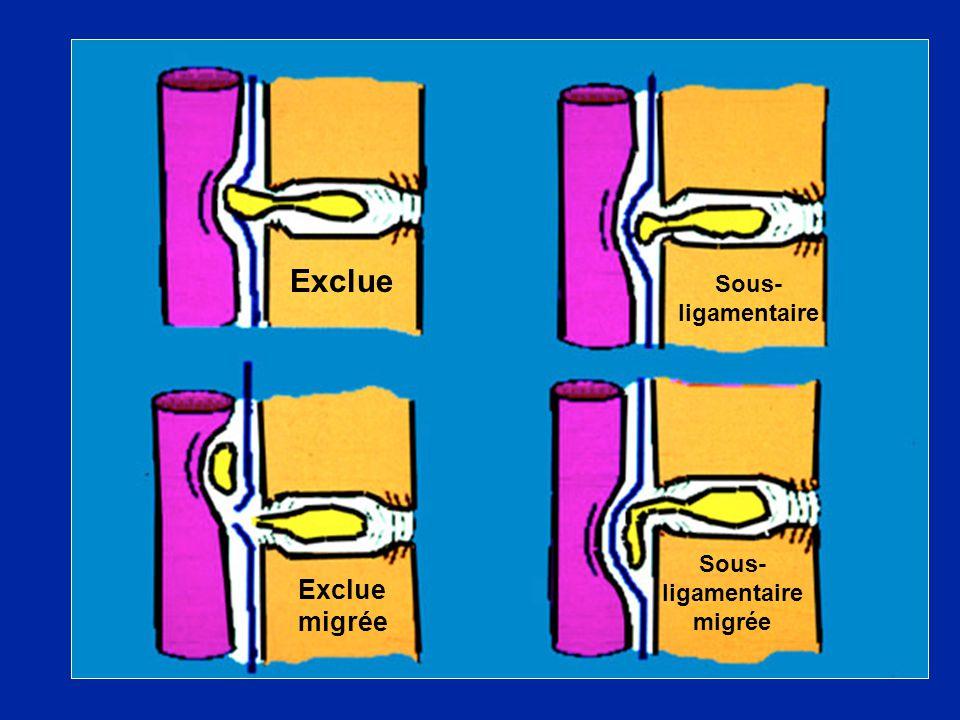 Exclue Sous- ligamentaire Exclue migrée Sous- ligamentaire migrée