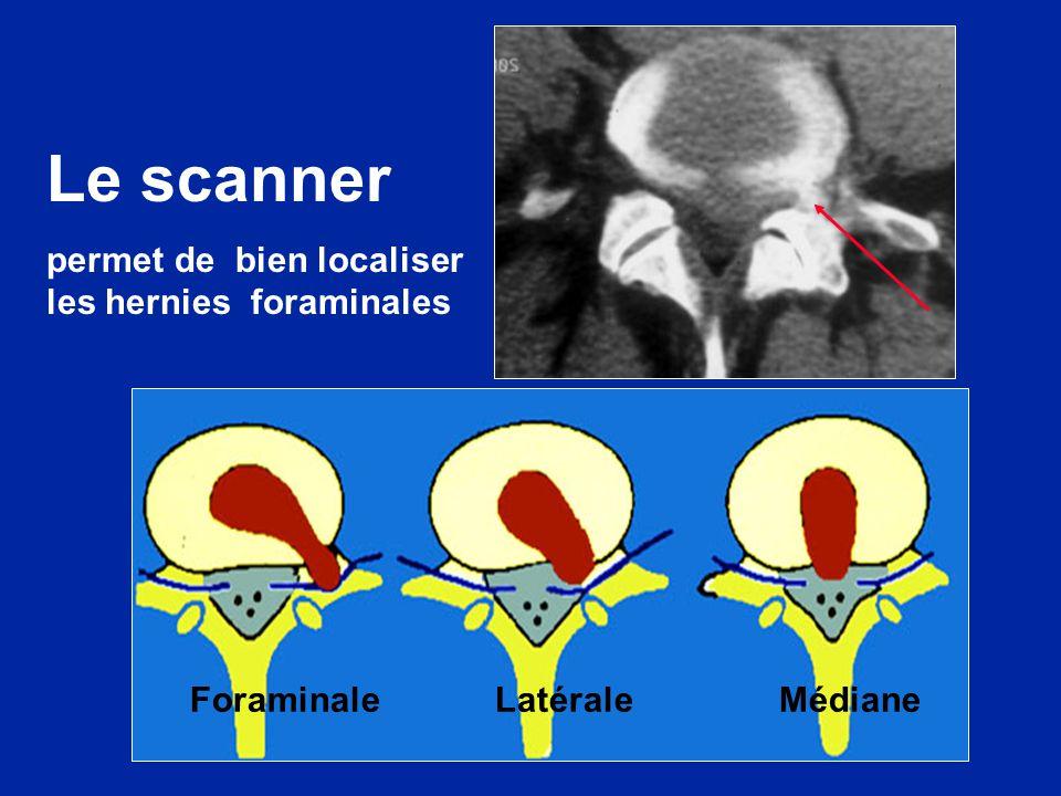 Foraminale Latérale Médiane Le scanner permet de bien localiser les hernies foraminales