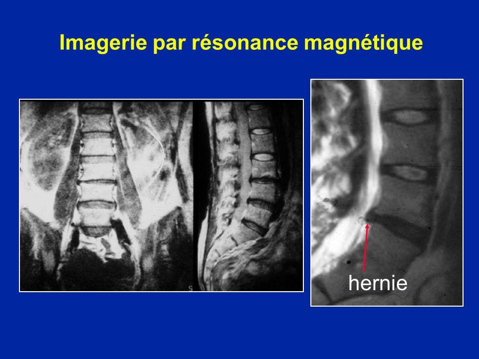 Imagerie par résonance magnétique hernie