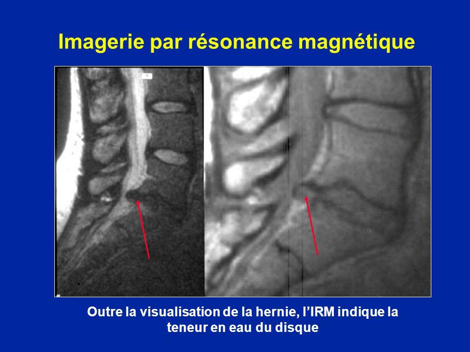 Imagerie par résonance magnétique Outre la visualisation de la hernie, lIRM indique la teneur en eau du disque