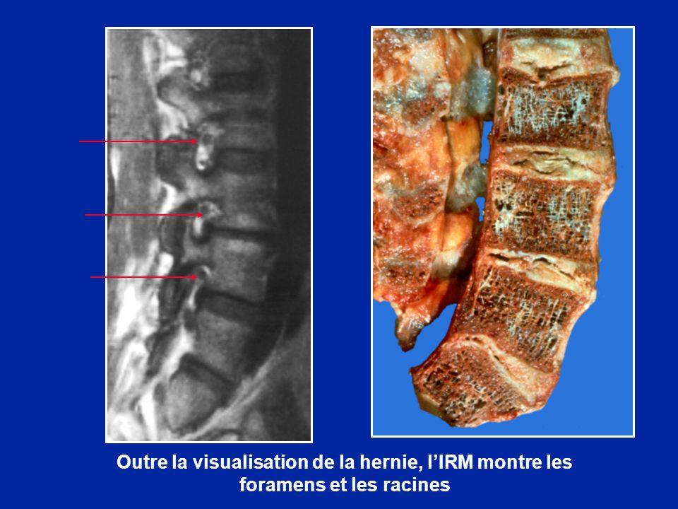Outre la visualisation de la hernie, lIRM montre les foramens et les racines
