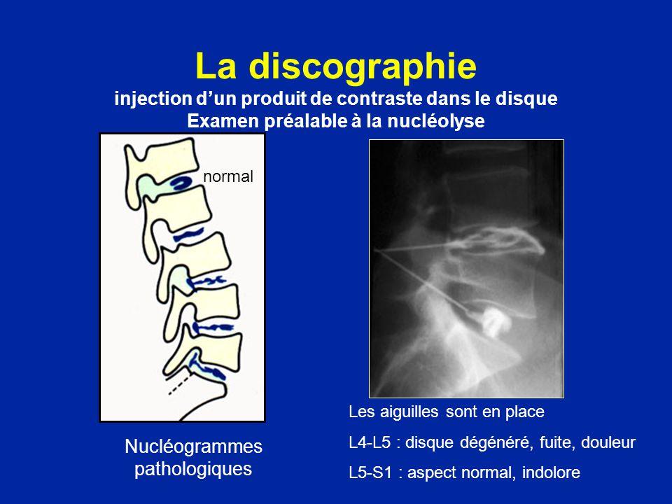 La discographie injection dun produit de contraste dans le disque Examen préalable à la nucléolyse Nucléogrammes pathologiques normal Les aiguilles so