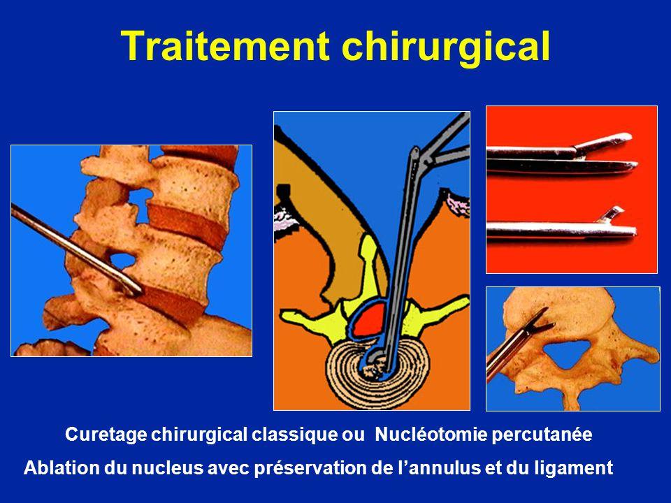 Curetage chirurgical classique ou Nucléotomie percutanée Ablation du nucleus avec préservation de lannulus et du ligament Traitement chirurgical