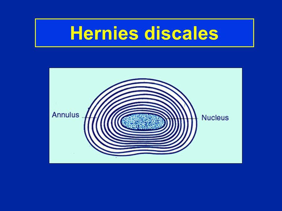 Lannulus fibrosus est le siège de micro-traumatismes et de micro-fissures qui peuvent aboutir à lextériorisation du nucleus