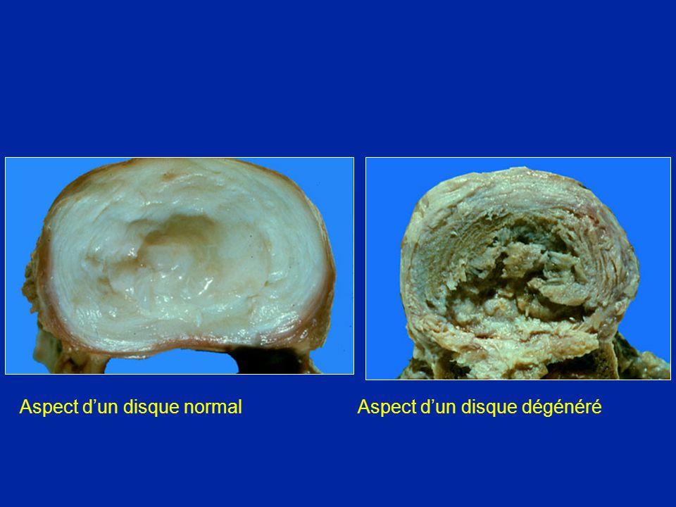 Aspect dun disque normalAspect dun disque dégénéré