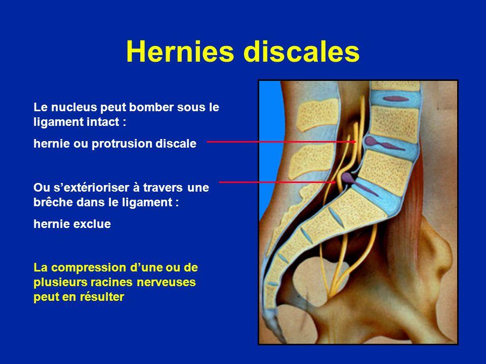 Hernies discales Le nucleus peut bomber sous le ligament intact : hernie ou protrusion discale Ou sextérioriser à travers une brêche dans le ligament