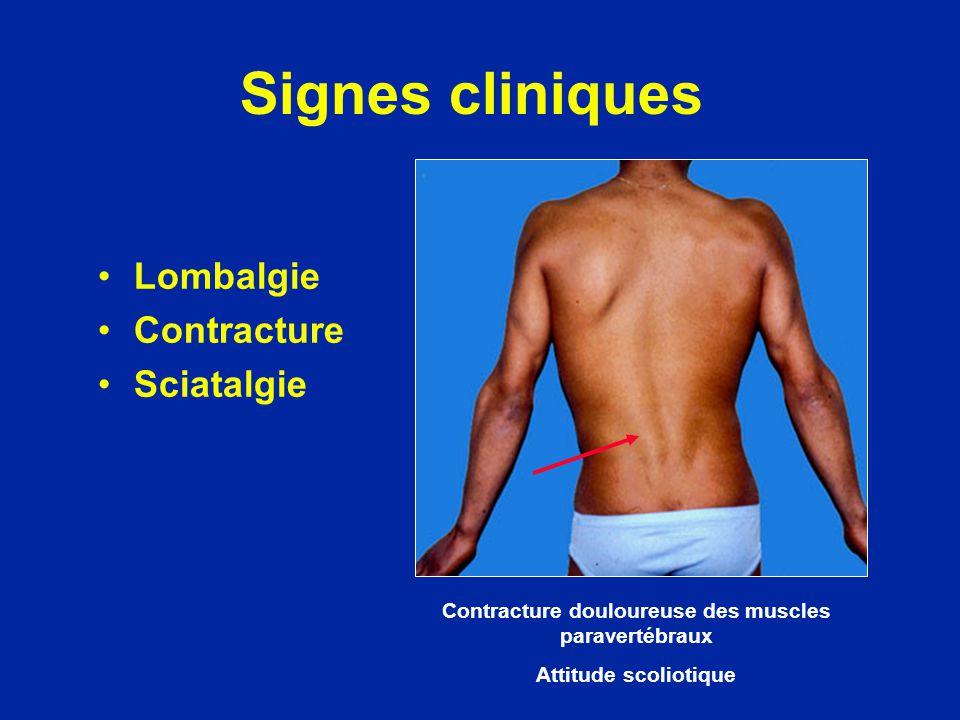 Signes cliniques Lombalgie Contracture Sciatalgie Contracture douloureuse des muscles paravertébraux Attitude scoliotique