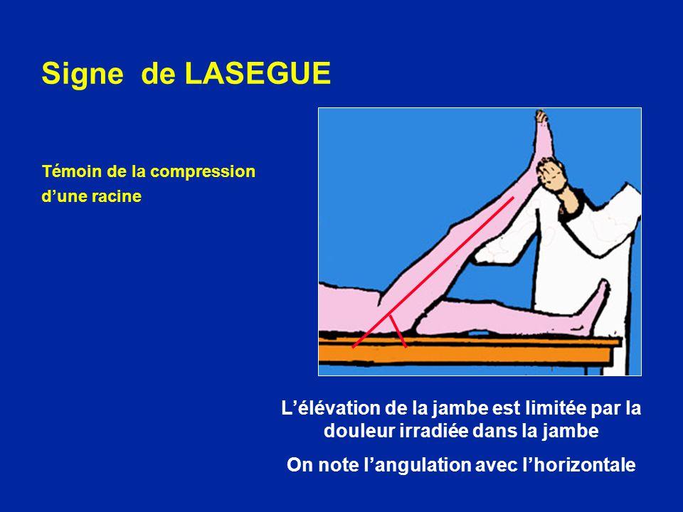 Signe de LASEGUE Témoin de la compression dune racine Lélévation de la jambe est limitée par la douleur irradiée dans la jambe On note langulation ave
