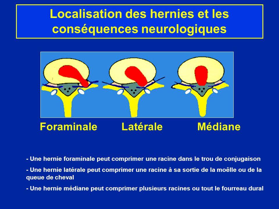 Foraminale Latérale Médiane - Une hernie foraminale peut comprimer une racine dans le trou de conjugaison - Une hernie latérale peut comprimer une rac