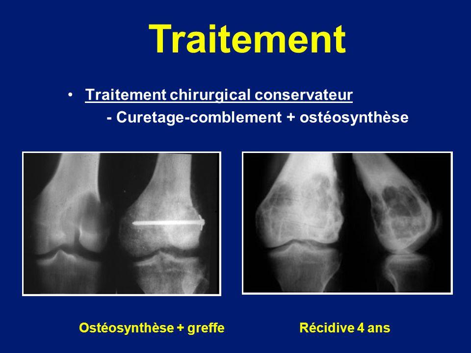 Traitement chirurgical conservateur - Curetage-comblement + ostéosynthèse Ostéosynthèse + greffe Récidive 4 ans Traitement